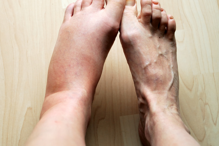 swelling Signs You Look Sick